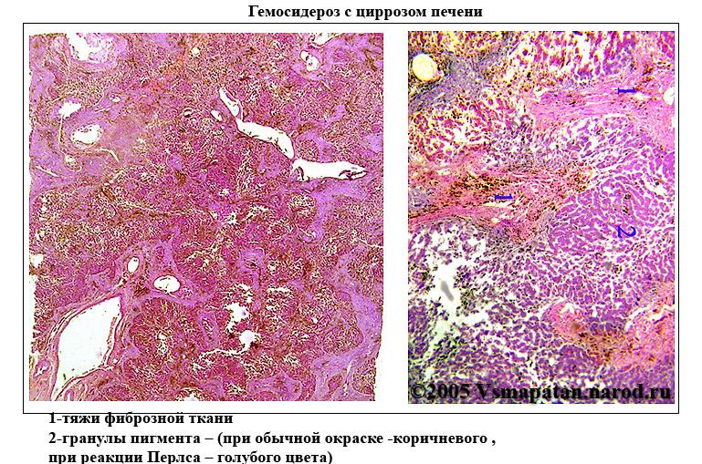 Гемосидероз фото
